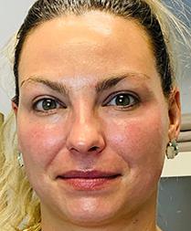 Lindsey After Facial Fitness